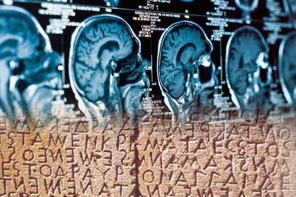 Η μελέτη των αρχαίων ελληνικών αναπρογραμματίζει τον εγκέφαλο των δυσλεκτικών παιδιών